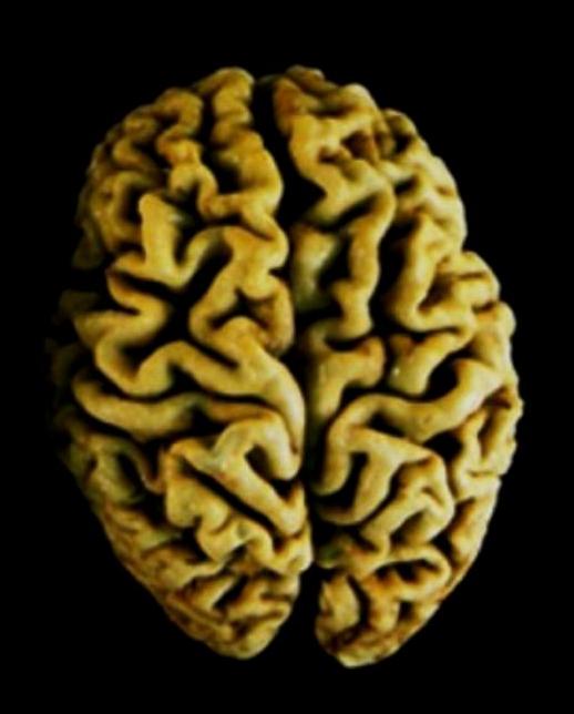 Cerebro Viejo