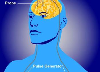 La depresión puede mejorar con estimulación eléctrica