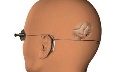 Implantes en el cerebro: una nueva revolución social